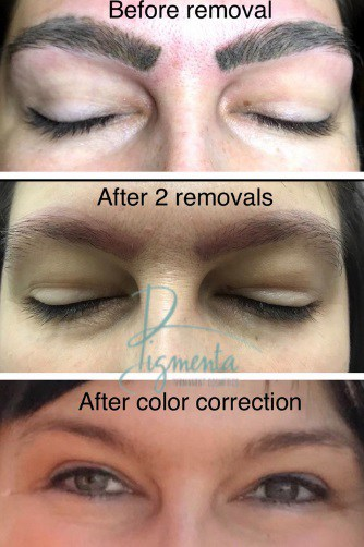 Can permanent eyeliner be corrected example