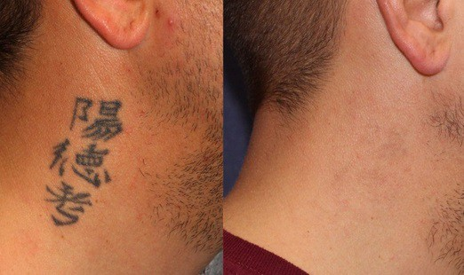 after 1 year neck tattoo removal