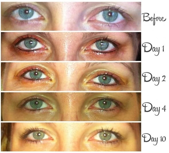 example swollen eyes after a eyeliner tattoo
