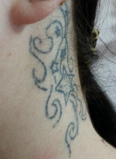 Crooked line tatto to fix